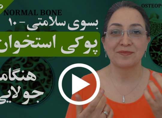 علل و چگونگی پوکی استخوان در افراد چیست و برای جلوگیری از ابتلا به آن چه میتوان کرد